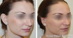 Otoplastie (Chirurgie esthétique des oreilles) - Cliché avant - Dr Franck Benhamou