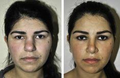 Пластика носа (Ринопластика) - Фотографии до - Alexander Kutubidze