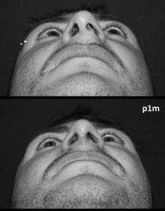 Rinoplastica - Foto del prima - Dott. Aurelio M. Cardaci