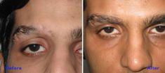 Eyebrow transplantation - Photo before - Azim Jahangir Khan M.D.