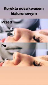 Kwas hialuronowy: Saypha, Restylane, Juvederm, Stylage - Podano 0,7 ml preparatu w celu wyprostowania grzbietu nosa.