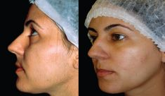 Esthetic Laser Clinic - fotka před - Esthetic Laser Clinic