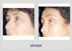 Eyelid surgery (Blepharoplasty) - Photo before - Dr. Lucian Fodor PhD