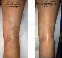 Vene varicose - scleroterapia - Foto del prima - Dott. Alvise Cavallini MD, PhD