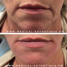 Augmentation des lèvres (acide hyaluronique) - Cliché avant - Dr. Richard Amat