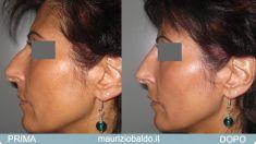 Rinoplastica non chirurgica - Foto del prima - Dott. Maurizio Baldo M.D.