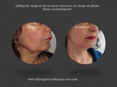 Lifting du visage - pour un résultat naturel en pleine forme!