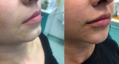 Hyaluronic acid-based wrinkle fillers - Photo before - MUDr. Merita Mazreku Spais