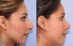 Wellness Kliniek Belgium - Affinage de la pointe du nez Correction de l'arête du nez