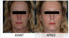 Lifting du visage - Cliché avant - Dr. Armand Halabi