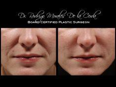 Hyaluronic acid-based wrinkle fillers - Photo before - Dr. Rodrigo Morales De la Cerda