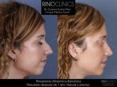 Cirugía de la nariz (Rinoplastia) - Resultado después de 1 año: Resultados naturales y preciso. Rápida recuperación.