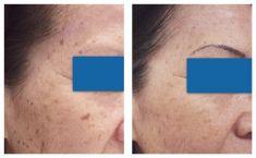 Laserowe usuwanie tatuażu i pigmentów - Zdjęcie przed - dr Krystyna Lubelska