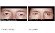 Korekcja powiek (Blepharoplastyka) - Zdjęcie przed - Mandala Beauty Clinic
