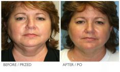 Laser Liposuction - CoolLipo - Photo before