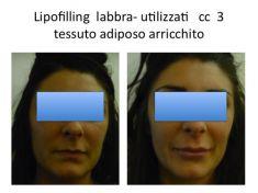 Ingrandimento labbra con grasso (lipofilling) - Foto del prima - Dr. Luigi Maria Lapalorcia Specialista in Chirurgia Plastica Ricostruttiva ed Estetica