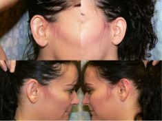 Ear surgery (Otoplasty) - Photo before - Martin Jugenburg M.D.,FRCSC