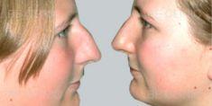 Rhinoplasty (Nose Job) - Photo before - Be Clinic