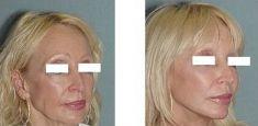 Facelift - Photo before - Dr. Vincente Rodrigo