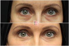 Operace očních víček (Blefaroplastika) - fotka před - MUDr. Michaela Hustá