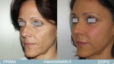 Impianti del viso, Impianti facciali - Foto del prima - Dott. Maurizio Baldo M.D.