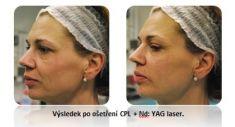 Amaryllis Centrum Praha - CPL ošetření + YAG laser