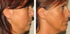 Radiofrequency Rejuvenation (Aluma, accent, TriPollar, Spa RF device, Re-Age) - Photo before - Dr n. med. Marcin Bieńkowski