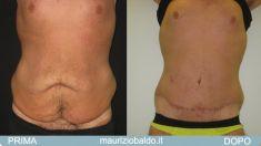 Body lifting - Foto del prima - Dott. Maurizio Baldo M.D.