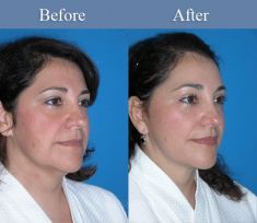 Facelift - Photo before - M.D., F.A.C.S. Bernard A. Shuster