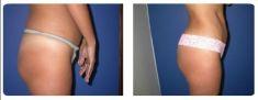 Aumento y Modelado de Glúteos - Foto Antes de - Dr. Juan Carlos Monroy Mejia