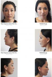 Facelift - Photo before - Dr. Omar Fouda Neel