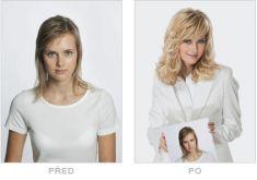 Léčba vypadávání vlasů - fotka před - Klinika YES VISAGE - klinika estetické medicíny a plastické chirurgie