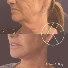 Neck lift - Photo before