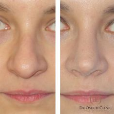 Rhinoplasty (Nose Job) - At Dr Osuch Clinic, we perform nose correction operations in bone and cartilage parts as well as total plasticity with septum correction. Total plastic surgery is recommended for people who have a humped nose, crooked or distorted due to injuries. Rhinoplasty in the cartilage area reduces the tip of the nose, making it much more subtle. Often, the plastic surgery of the tip of the nose brings a huge improvement in the appearance of the entire face