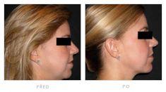 Neinvazivní lifting - fotka před - Klinika YES VISAGE - klinika estetické medicíny a plastické chirurgie