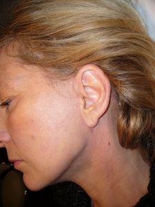 Lifting du visage - cicatrice lifting