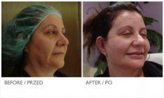 Facelift, Lifting twarzy (podciąganie powłok twarzy) - Zdjęcie przed - Mandala Beauty Clinic