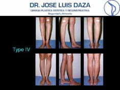 Buttock and calf plastic surgery - Photo before - Dr. Jose Luis Daza Flores