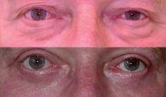 Operace dolních víček - fotka před - prim. MUDr. Aleš Fibír Ph.D.