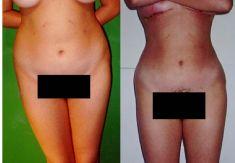 Eliminar grasa - Liposucción ultrasónica - Foto Antes de