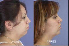 Chirurgie du double-menton - Cliché avant - Dr Fabrice Poirier
