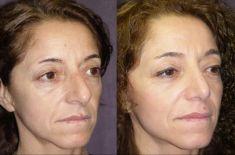 """Rinoplastica - Nei trequarti e nel profilo, le proporzioni tra dorso e punta sono migliorate ed il volume del naso ridotto per quanto è possibile """"strutturalmente"""""""