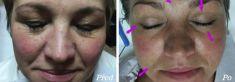 Brandeis Clinic by Lucie Kalinová - Photo before - Brandeis Clinic by Lucie Kalinová