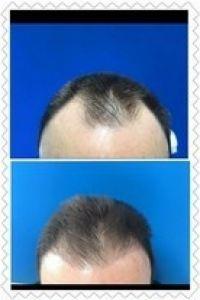 Transplantace vlasů - fotka před - LaserPlastic