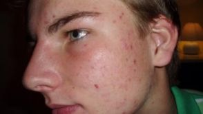 Acne - An Equal Opportunity Skin Problem