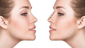 Correzione della gobba del naso