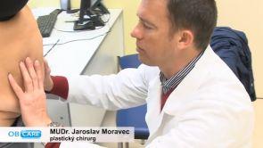 Abdominoplastika v OB CARE Praha
