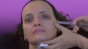 Injections d'acide hyaluronique dans les pommettes