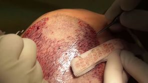 FUE Haartransplantation, Aesthetic Clinic Med