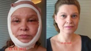 Moje cesta za mladším obličejem – SMAS facelift krok po kroku